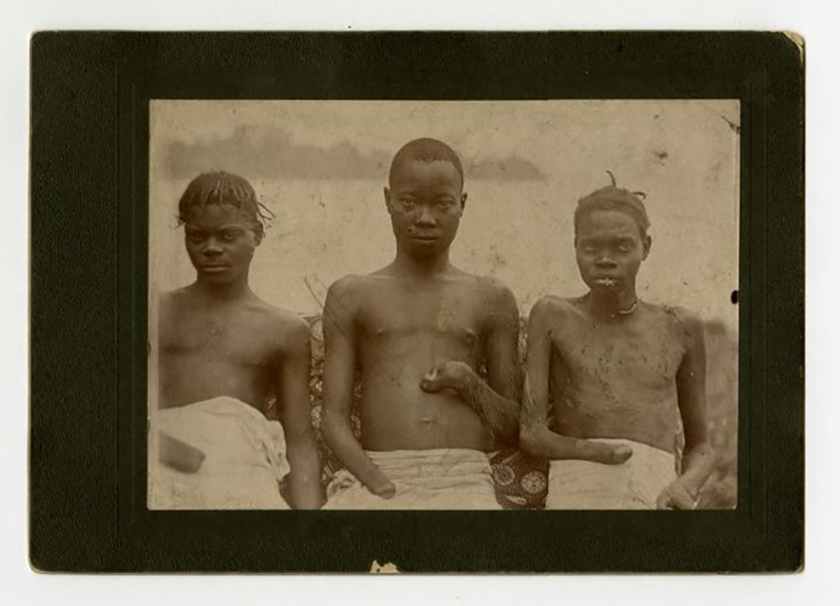 Gammalt ftot av tre pojkar med avhuggna händer.