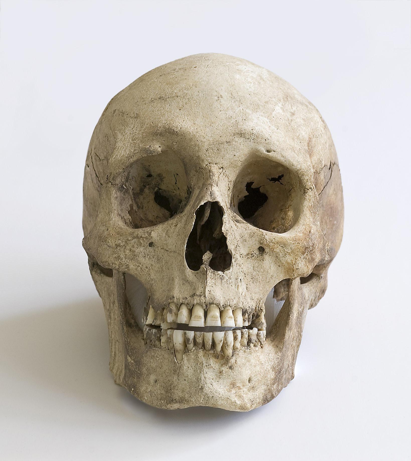 Bild av skalle från Vannhögsgravfältet